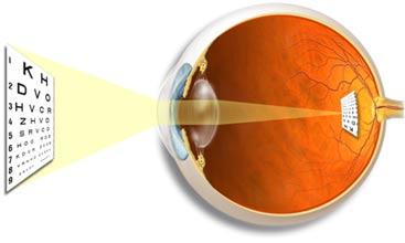 eye emmetrop