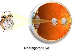eye myopic