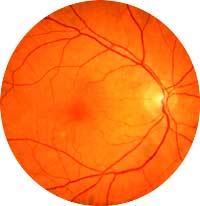 norm retina